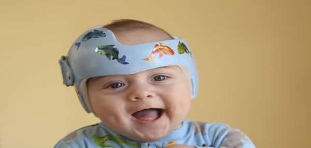 علاج الجبهة البارزة عند الأطفال