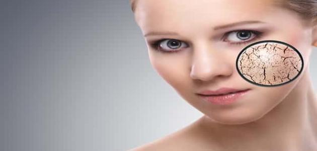 علاج تقشير الوجه عند وضع المكياج