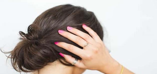 أعراض التهاب فروة الرأس