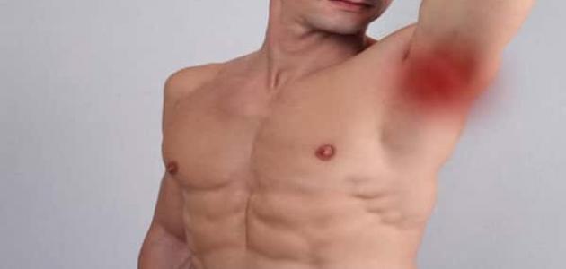 سرطان الغدد الليمفاوية تحت الإبط