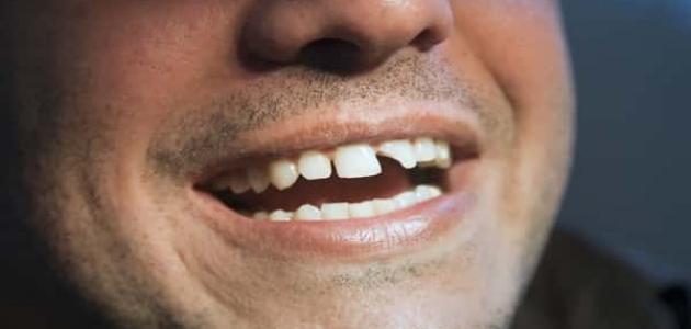 أسباب تآكل الأسنان عند الكبار