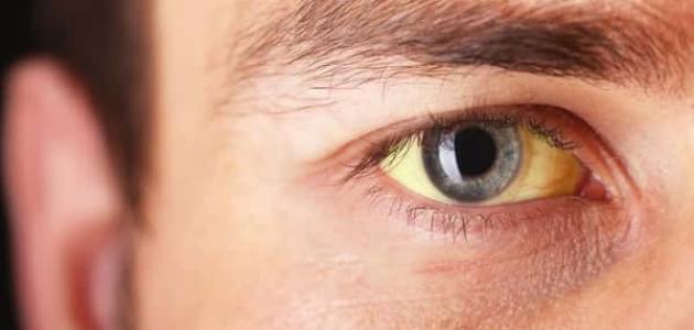 أسباب اصفرار العين
