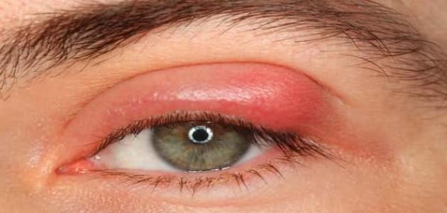 كيفية علاج التهاب جفن العين
