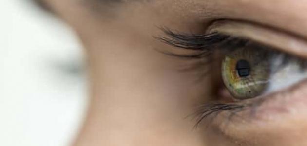 علاج التهاب قرنية العين