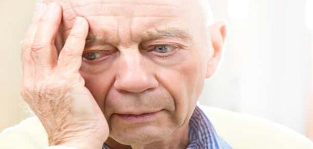معلومات عن مرض الزهايمر