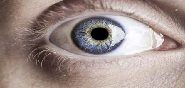 طريقة تخفيف صبغة الميلانين في العين