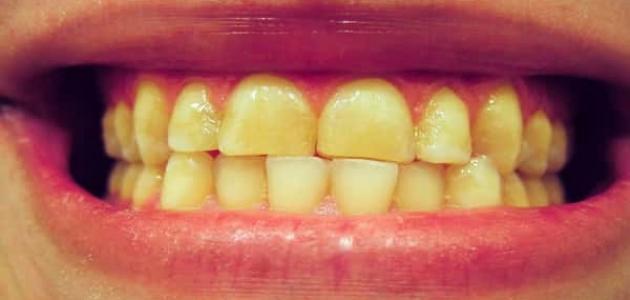 ضعف طبقة المينا في الأسنان وطريقة علاجها