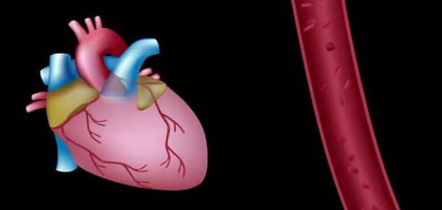 طرق علاج احتشاء عضلة القلب