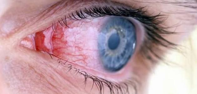 التهاب العين الفيروسي وعلاجه