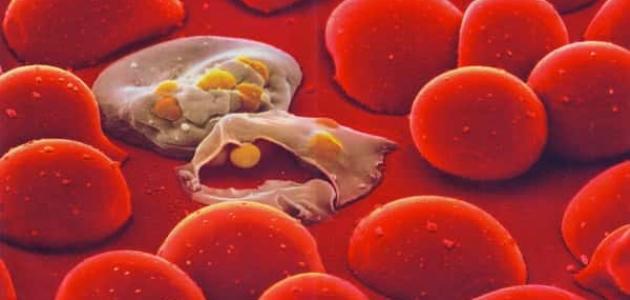 ما هو مرض الملاريا