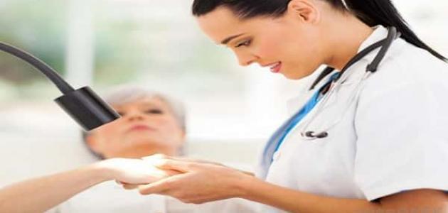 علاج الكيس الدهني تحت الجلد