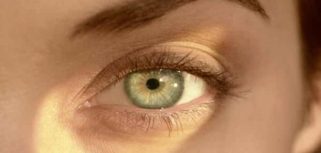أعراض ارتفاع ضغط العين