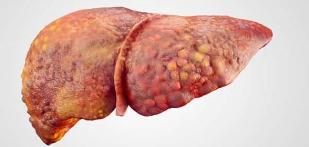 معلومات عن غيبوبة الكبد