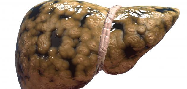 علاج الدهون على الكبد بالأعشاب