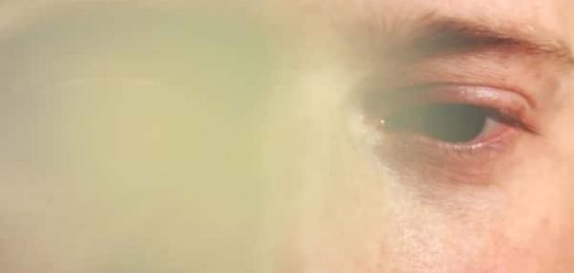 علاج العمى المؤقت
