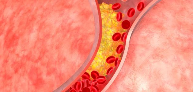 معلومات عن أمراض الأوعية الدموية