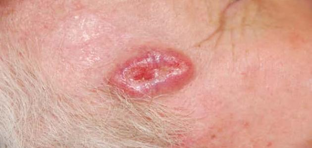 سرطان خلايا الجلد القاعدية