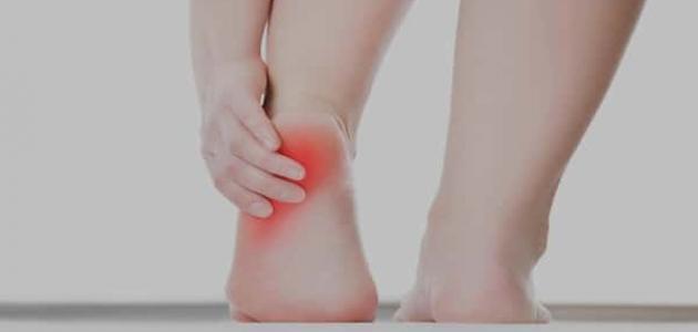 علاج ألم كعب القدم بالأعشاب
