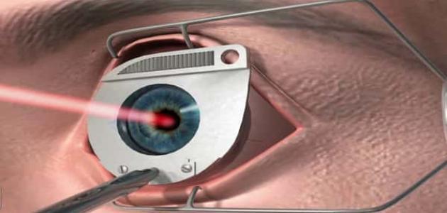 أضرار عملية تصحيح النظر بالليزر