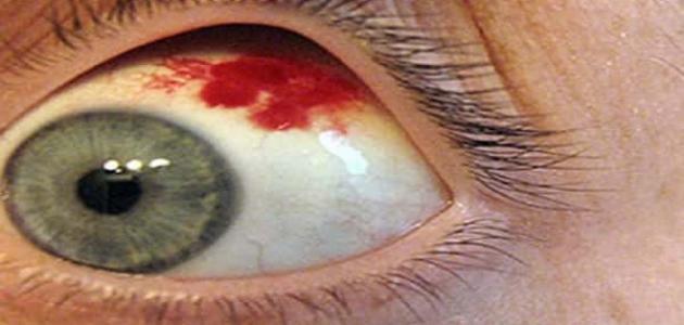 أسباب ظهور بقعة دم في بياض العين