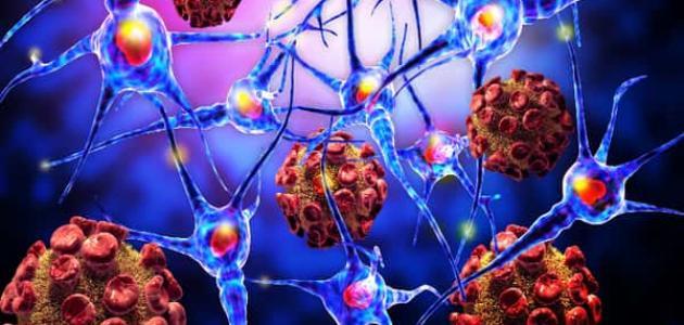 معلومات عن الورم العصبي الليفي
