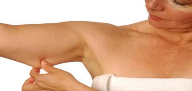 معلومات عن ترهل الجلد
