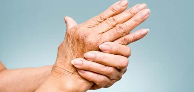 طرق علاج الروماتيزم