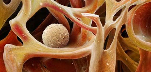 هل مرض المايلوما خطير