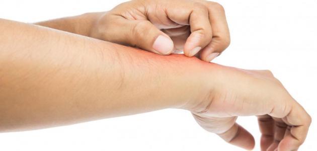 طرق علاج حساسية الدم
