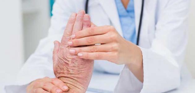 معلومات عن تسوس العظام