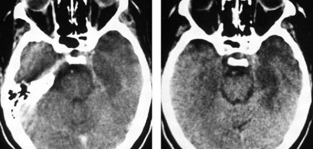 ما هي أعراض التهاب الدماغ