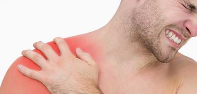 أعراض خلع الكتف
