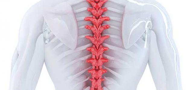 أعراض التهاب النخاع الشوكي