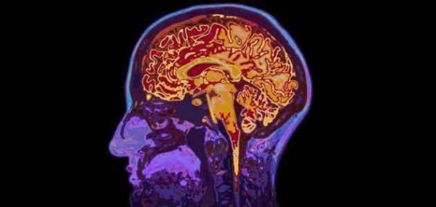 معلومات عن التهاب الدماغ