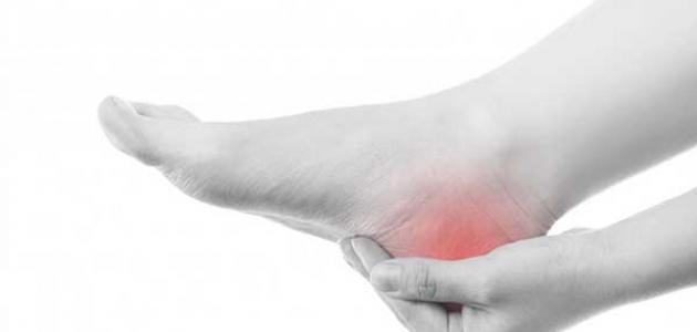 معلومات عن ألم كعب القدم