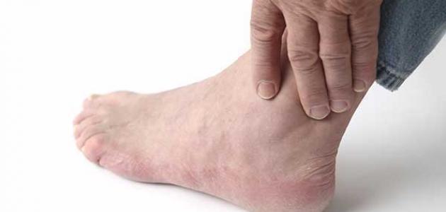 أعراض ارتفاع حمض البول