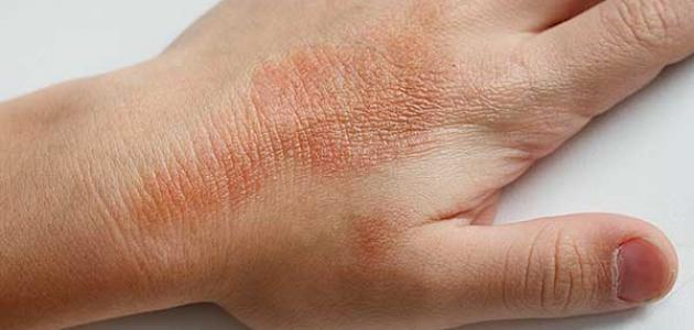 معلومات عن التهاب الجلد التأتبي