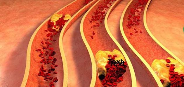 أعراض نقص الكولسترول النافع