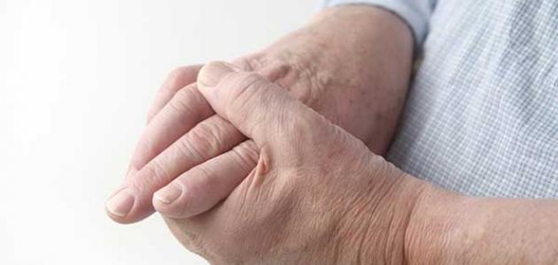 أعراض نقص النحاس في الجسم