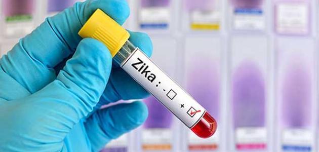 أعراض فيروس زيكا