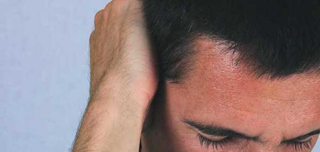 أسباب صداع خلف الرأس