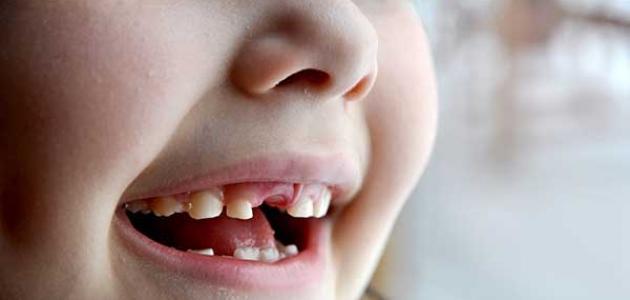 مشاكل الأسنان الأكثر انتشاراً