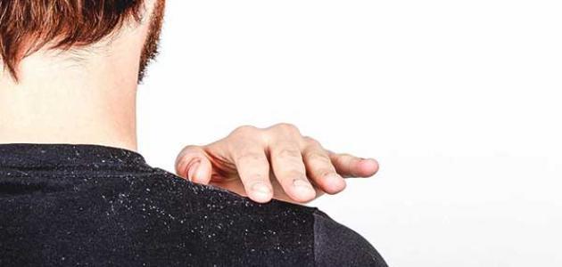 أسباب قشرة الشعر وعلاجها