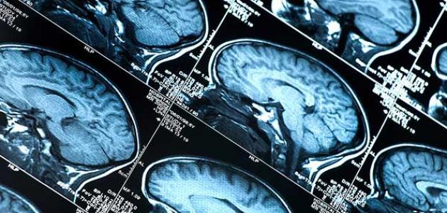 طرق علاج جلطة الدماغ