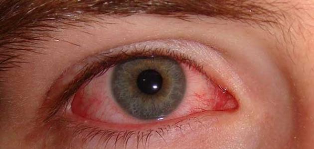 طرق علاج حساسية العين واحمرارها