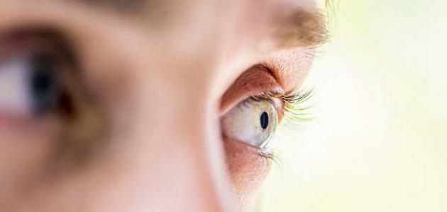 ضعف عضلة العين وعلاجها