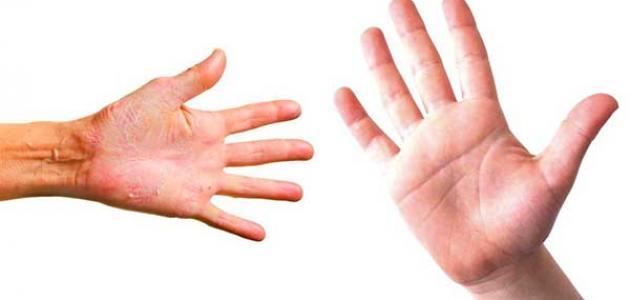 أسباب حساسية باطن الكف