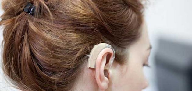 خصائص الإعاقة السمعية