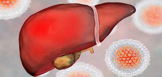 علاج تليف الكبد بحليب الإبل