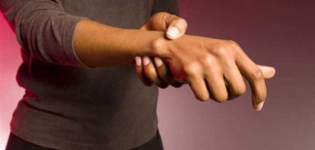 علاج الورم الكيسي في اليد
